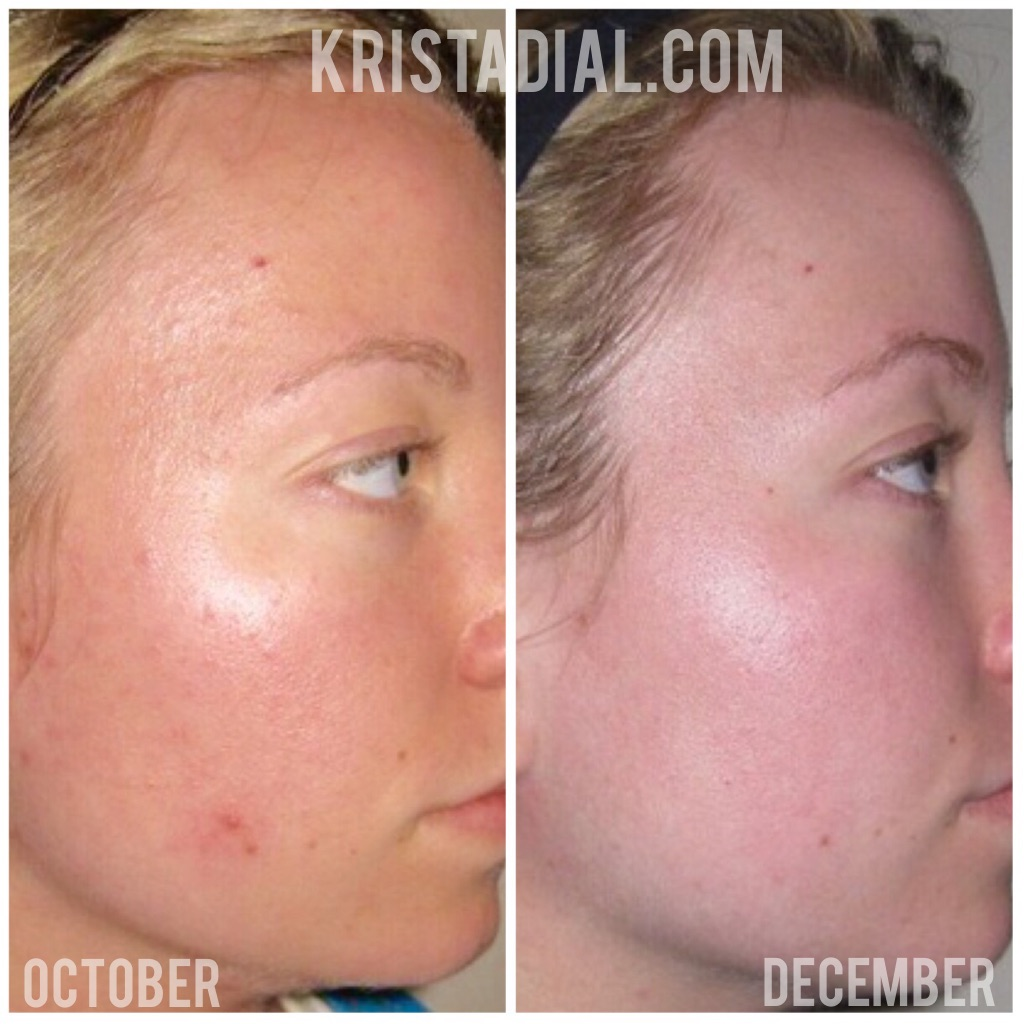 acne-skincare-treatment-krista-dial-beauty
