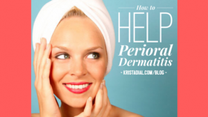 Are you struggling with Perioral Dermatitis?