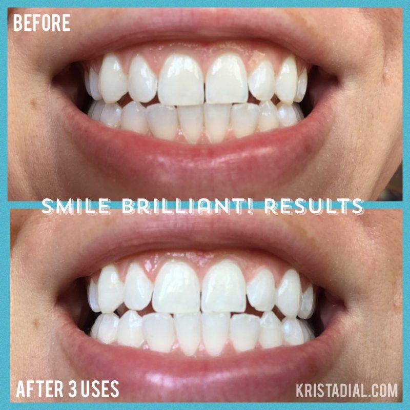 smile-brilliant-teeth-whitening-krista-dial